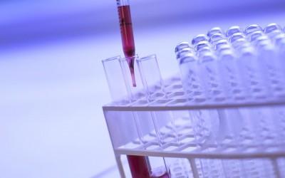 Test prenatale di paternità e test DNA fetale