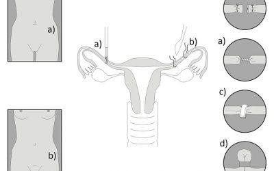 Sterilizzazione femminile a Brescia