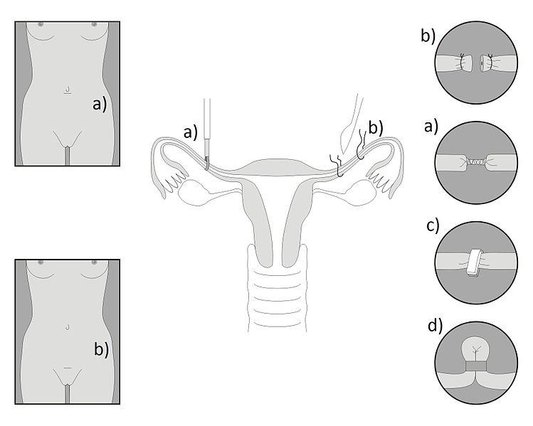 Sterilizzazione femminile Bergamo e provincia